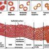 Loạn sản cổ tử cung có thể dẫn tới ung thư cổ tử cung