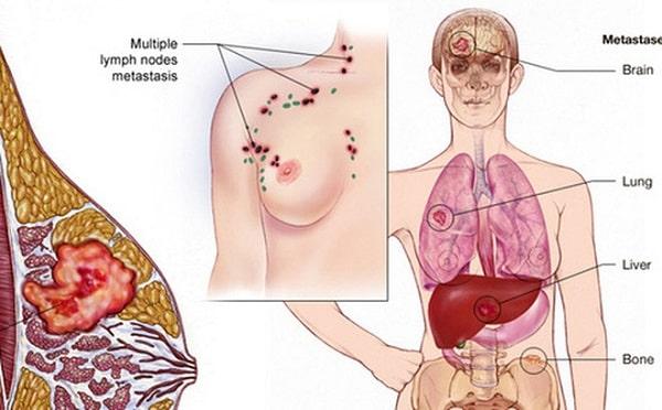nguy cơ ung thư vú