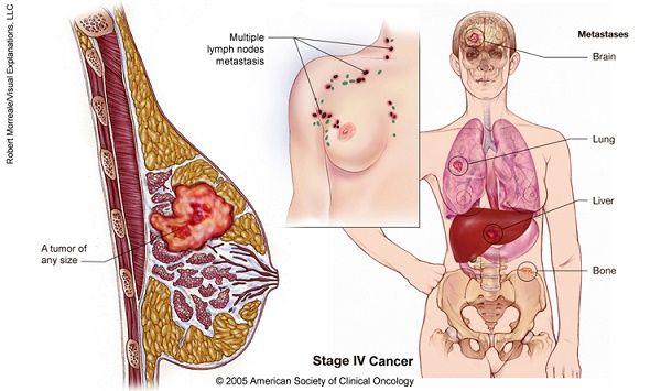 Sự khác biệt giữa khối u lành tính và ác tính 3