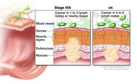 Tìm hiểu về ung thư đại tràng giai đoạn 3