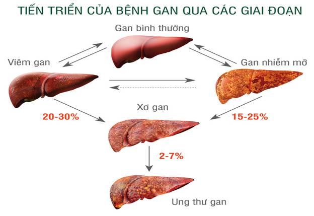 Ung thư gan Hcc 4