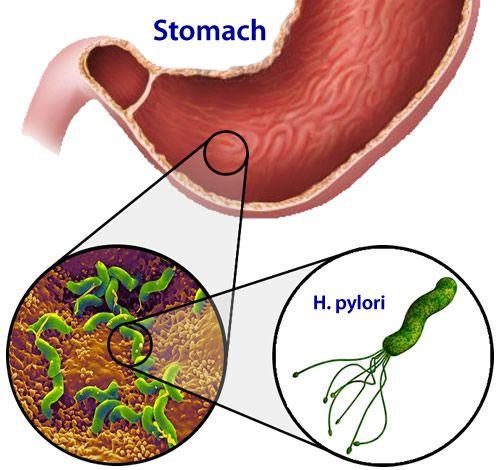 helicobacter_pylori