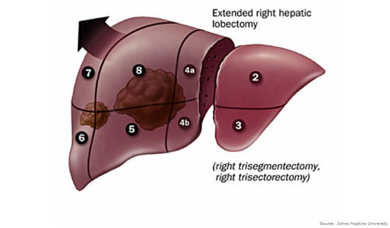 Ung thư gan Hcc 5