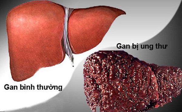 bỏng ngô gây ung thư gan