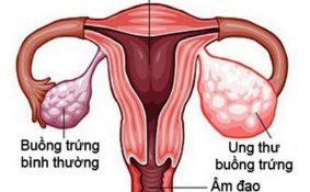 Nguy cơ ung thư buồng trứng tái phát