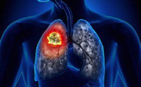 Bông cải xanh ăn sống và công dụng phòng chống ung thư