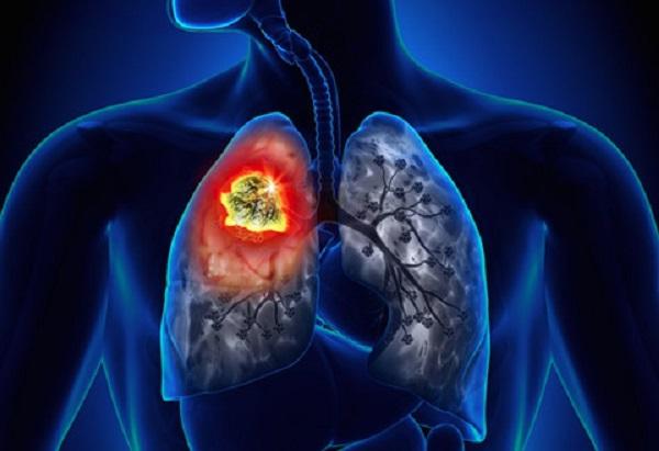 phòng tránh ung thư phổi