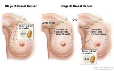 Ung thư vú giai đoạn 1 sống được bao lâu?