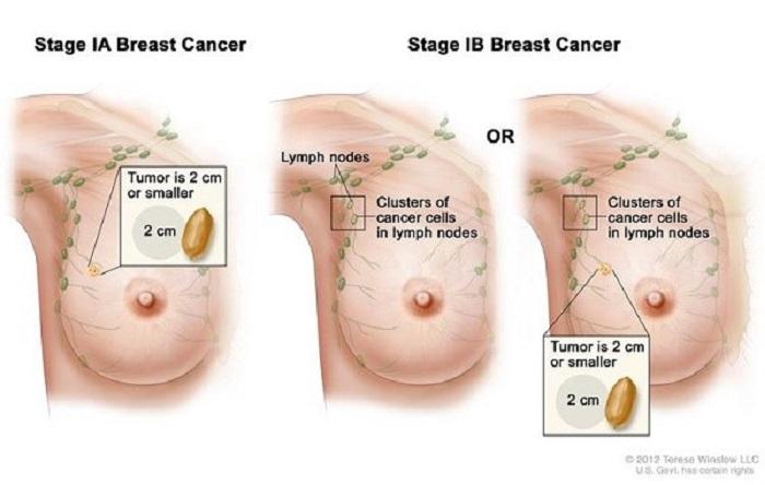 Ung thư vú giai đoạn 1