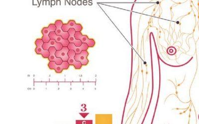 Ung thư gan giai đoạn đầu sống được bao lâu?