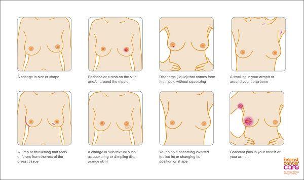dấu hiệu ung thư vú 2