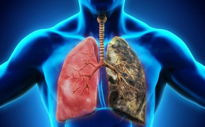 Triệu chứng ung thư phổi giai đoạn 2_1