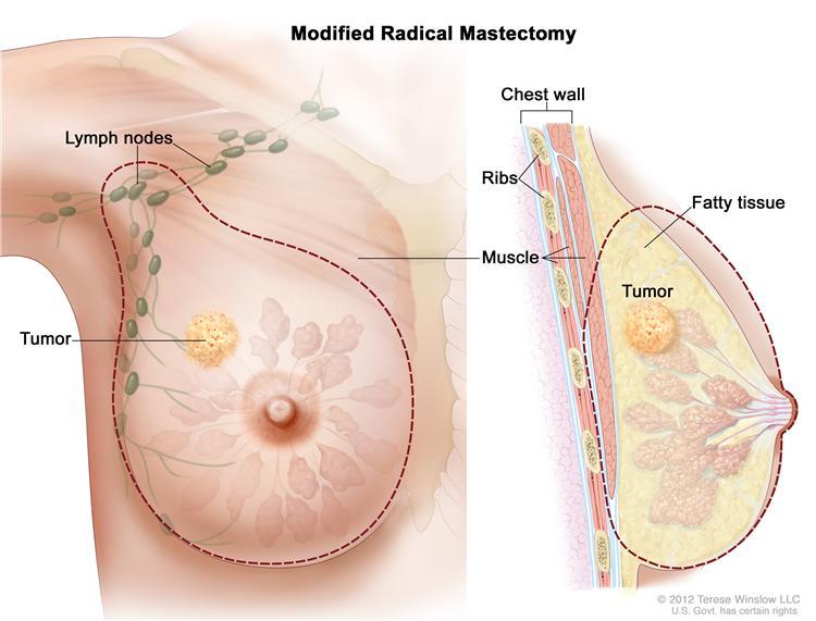 phẫu thuật ung thư vú