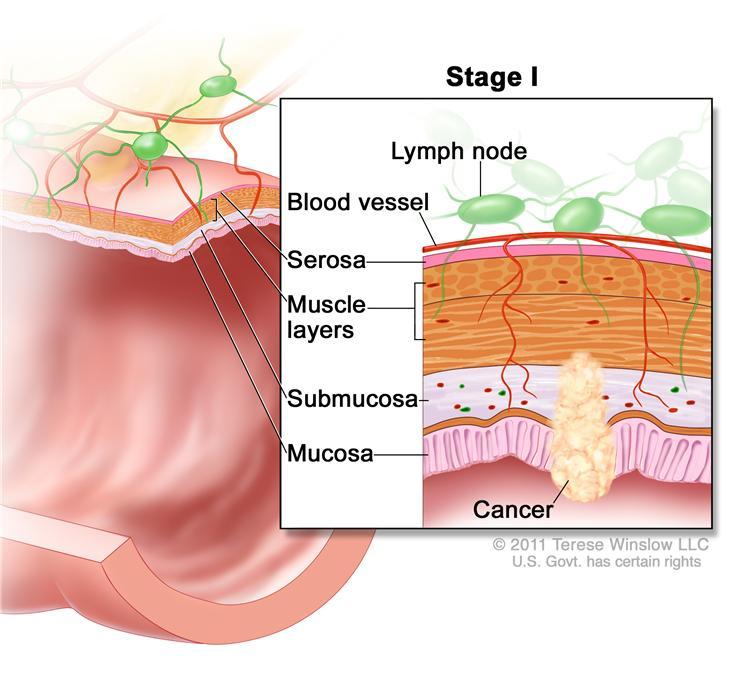 ung thư giai đoạn 1