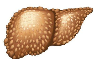 Tìm hiểu về ung thư gan HCC
