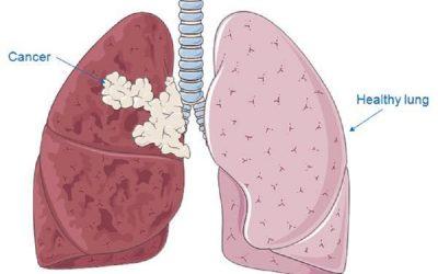 Triệu chứng ung thư phổi giai đoạn 2