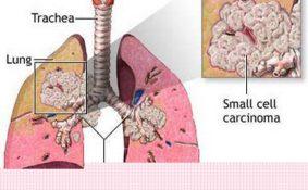 Tìm hiểu về ung thư phổi tế bào nhỏ