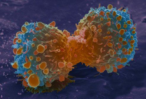 chùm ảnh về ung thư phổi9