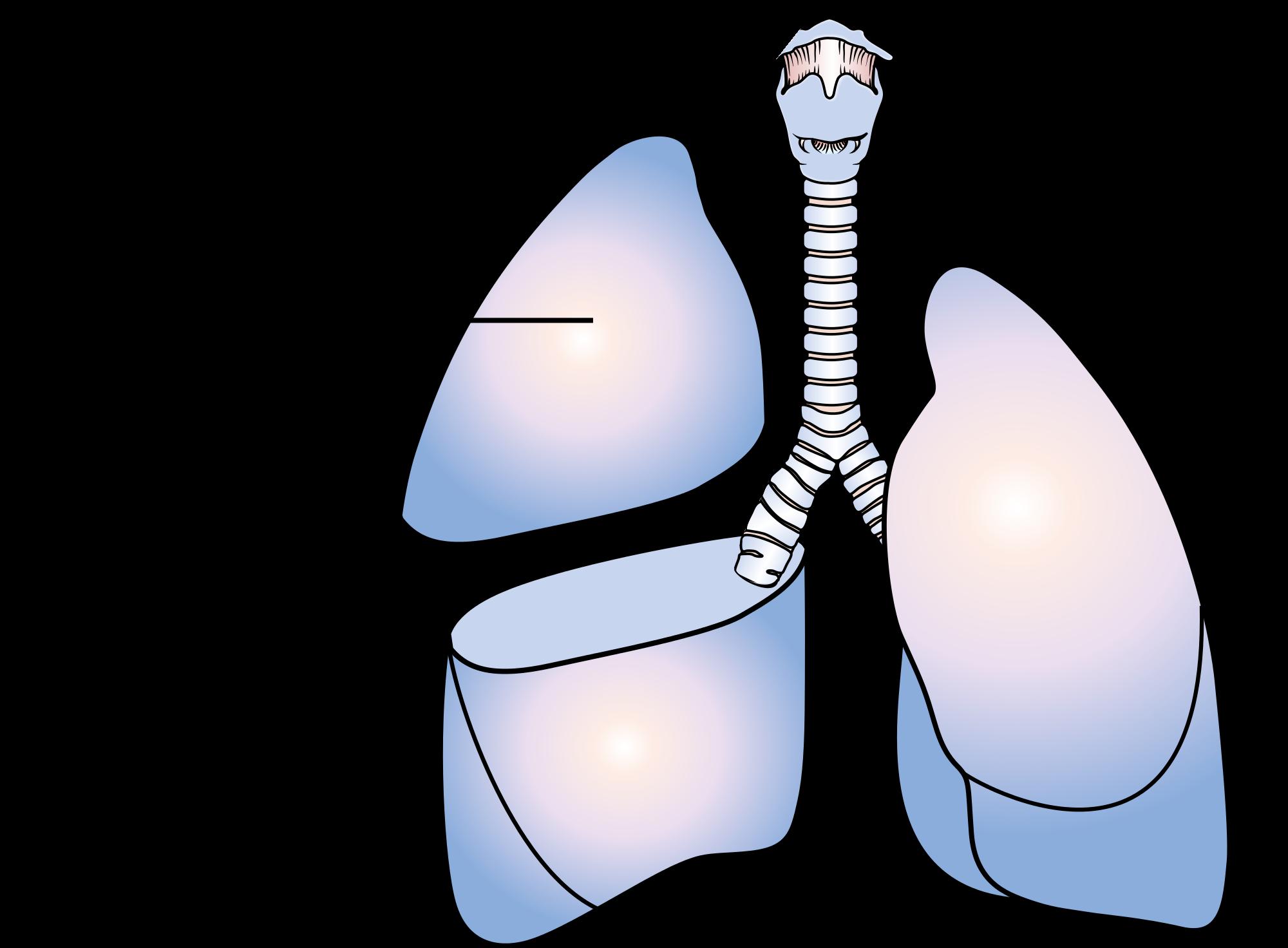 phẫu thuật ung thư phổi2