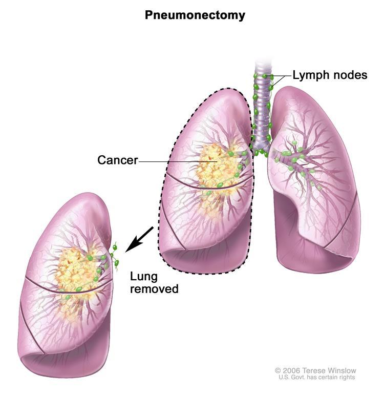 phẫu thuật ung thư phổi3