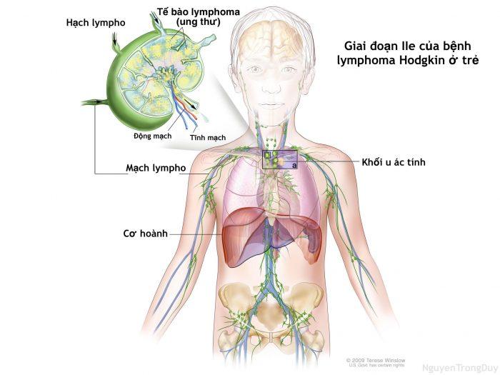 Ung thư hạch là gì 1