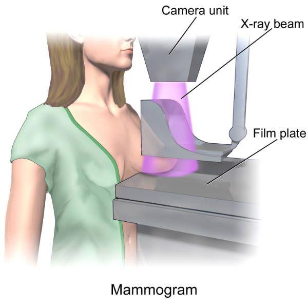Chụp quang tuyến vú