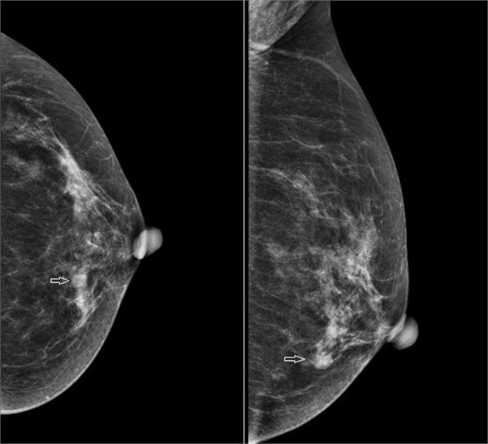 Chụp quang tuyến vú 2