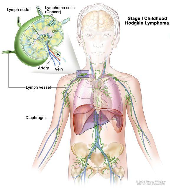 Ung thư hạch không Hodgkin