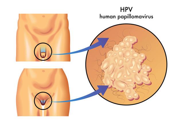 HPV dương tính 3