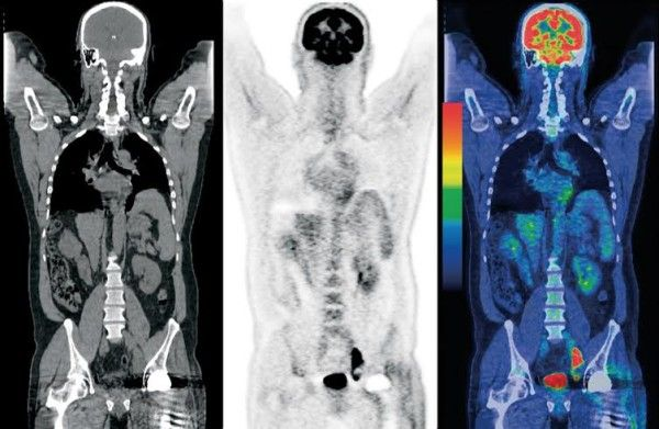 Images from a positron emission tomography scanner.