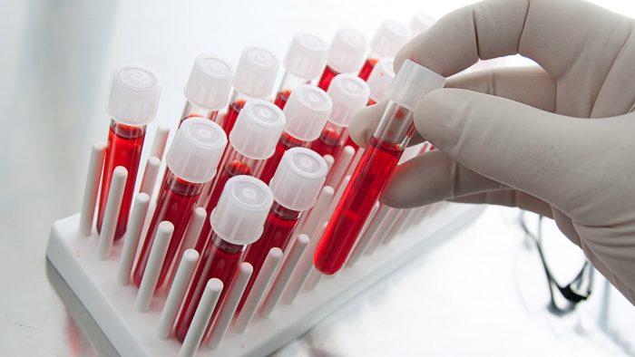 Các xét nghiệm miễn dịch chẩn đoán ung thư 1
