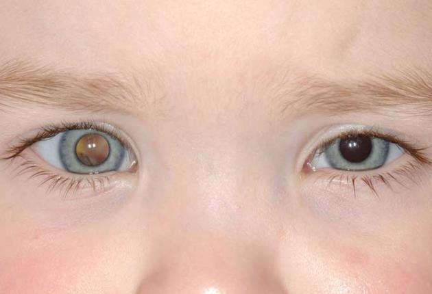 Các triệu chứng: thị lực kém, mắt lé, có ánh trắng đồng tử, giống mắt mèo có thể là biểu hiện của u nguyên bào võng mạc.