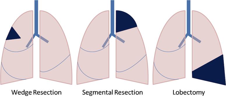 Chi phí phẫu thuật phổi tại Thu Cúc