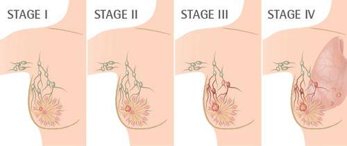 Các giai đoạn của ung thư vú