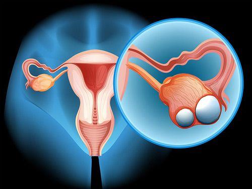 Ung thư buồng trứng là bệnh ung thư nguy hiểm nhất trong các bệnh ung thư phụ khoa.