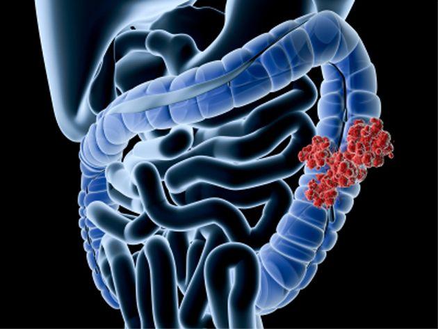 Ung thư đại tràng là căn bệnh ác tính liên quan tới đường ruột.