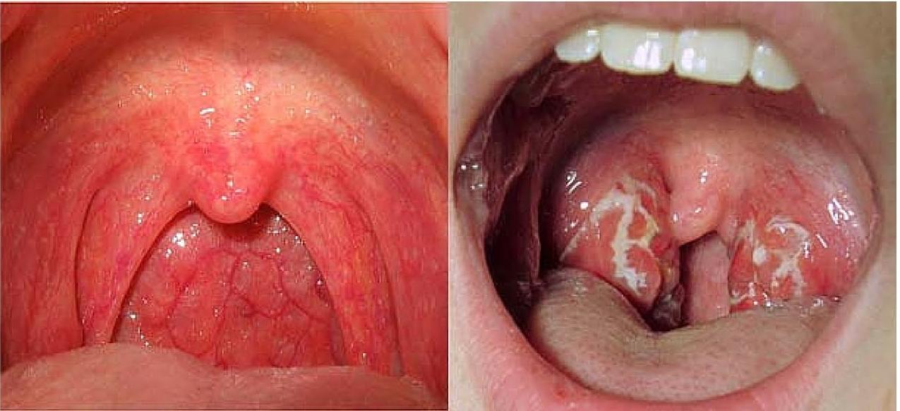 Nội soi vòm họng tầm soát ung thư