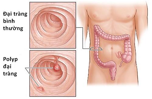 Các polyp đại trực tràng có nguy cơ rất cao phát triển thành ung thư đại trực tràng.