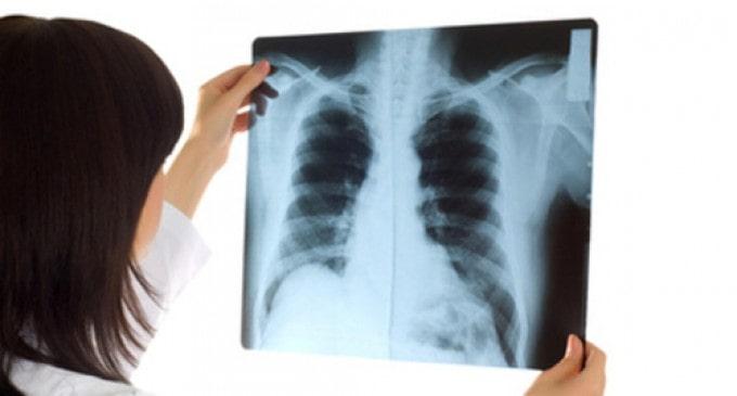 Giá chụp X quang phổi bao nhiêu 1