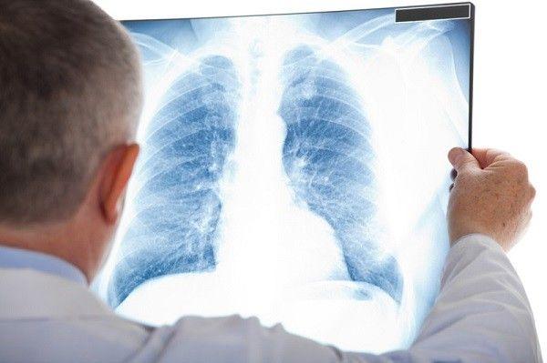Giá chụp X quang phổi bao nhiêu?