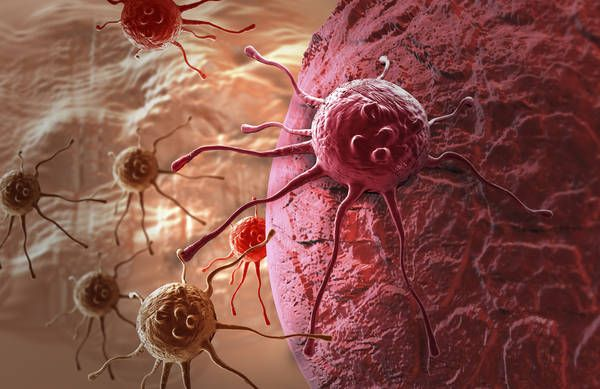 Theo thời gian, cả u xơ tuyến vú và ung thư vú đều có thể tăng quy mô.