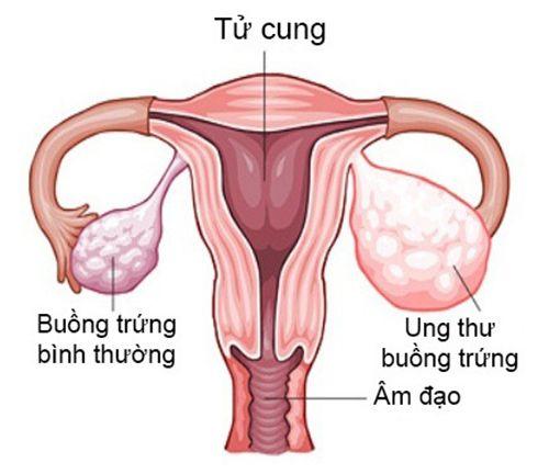 3-benh-ung-thu-bo-phan-sinh-duc-pho-bien-o-phu-nu