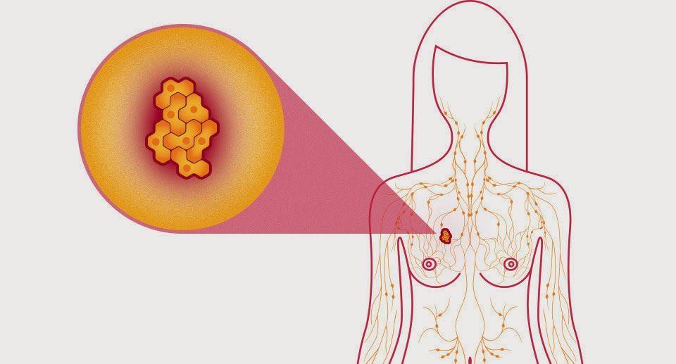 Ngứa ngực cảnh báo ung thư vú.