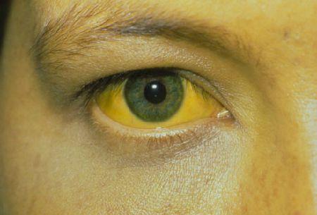 Vàng da, vàng mắt cảnh báo ung thư gan