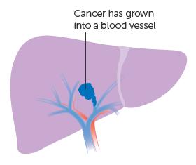 Giai đoạn IIA: một khối u ác tính duy nhất, bắt đầu xâm lấn vào các mạch máu của gan