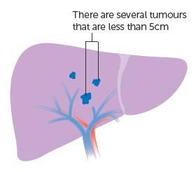 Giai đoạn IIB: nhiều khối u nhỏ hơn 5cm nhưng không phát triển thành các mạch máu