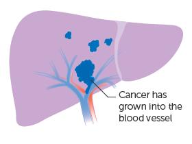 Giai đoạn IIIB: ung thư đã phát triển vào những mạch máu chính của gan (tĩnh mạch cửa hoặc tĩnh mạch gan). Nhưng các tế bào ung thư không lây lan vào các hạch bạch huyết hoặc bất kỳ phần nào khác của cơ thể.