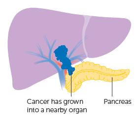 Giai đoạn IIIC: ung thư lan đến các cơ quan gần với gan (không bao gồm túi mật), hoặc thông qua các lớp màng bọc xung quanh các cơ quan nội tạng của bụng.