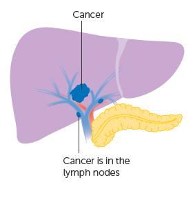 Giai đoạn IVA: các khối ucó thể đã phát triển đến các mạch máu hoặc các cơ quan xung quanh gan, lan đến các hạch bạch huyết nhưng không xâm lấn đến các bộ phận khác của cơ thể.
