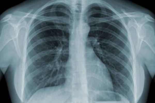 Chụp X quang phổi có hại không